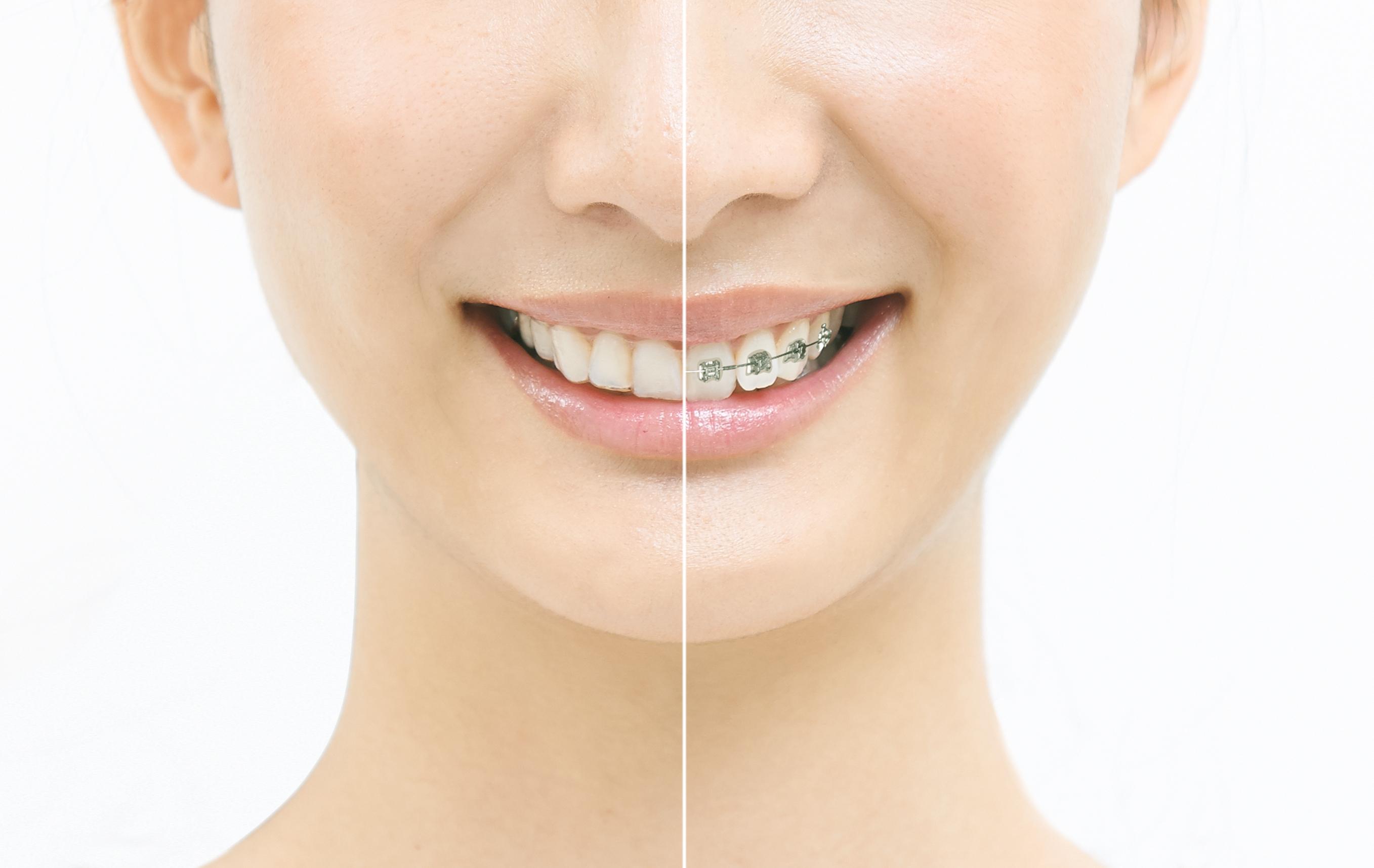 永久歯の矯正期間が短縮